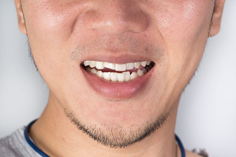 man with crooked teeth smiling